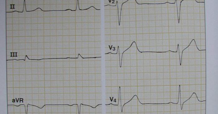 EKG - Foto. Dr. Barbara Seidel